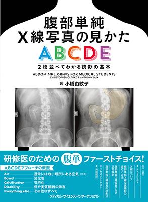 腹部単純X線写真の見かたABCDE